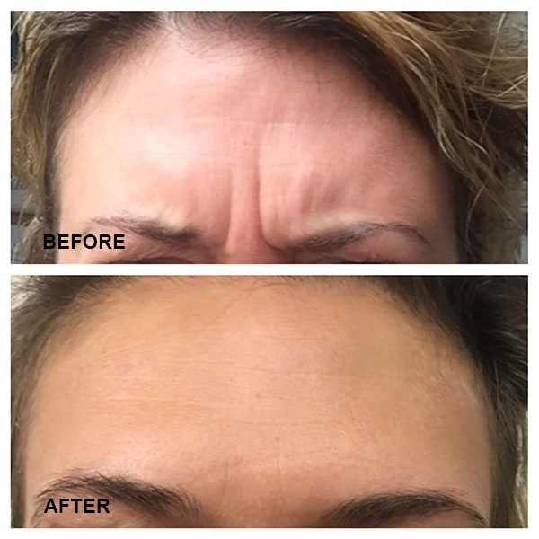 Furrowed Brows Before & After Botox Treatments