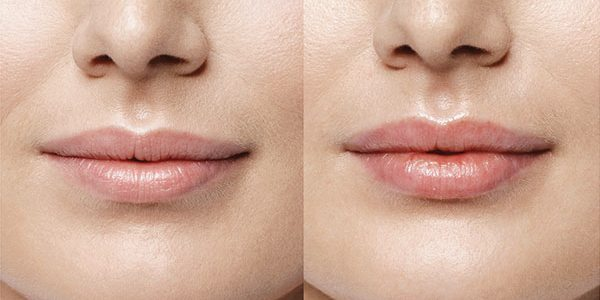 Improved fullness and contour before and after Volbella lip injections.