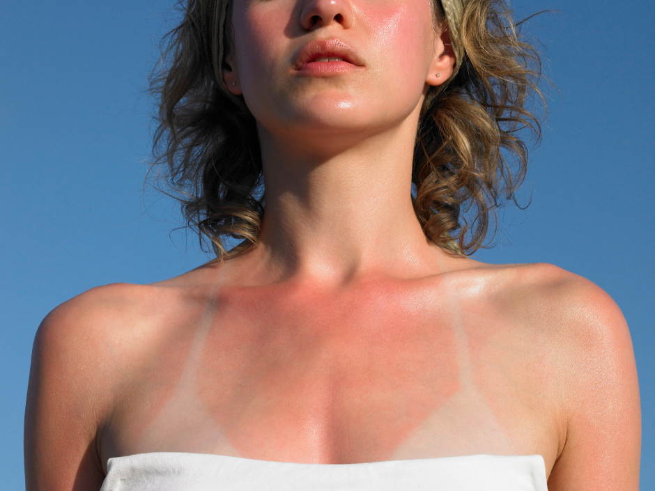 Woman with sunburn on her face, neck and chest.