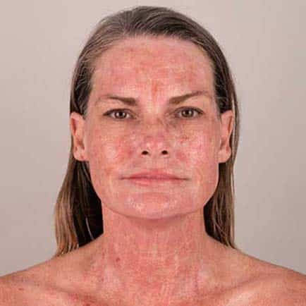 Woman's face immediately following an RF microneedling treatment
