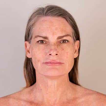 Woman's face before a RF microneedling treatment shows sun damage and brown spots