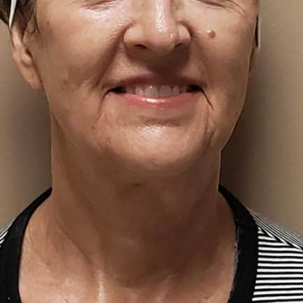 After photo of woman's face and neckline after RF microneedling