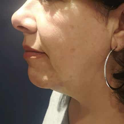 Side profile image of a woman's face 3 months after receiving RF Microneedling.