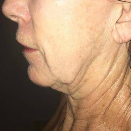 Woman's face and neckline before RF Microneedling treatment