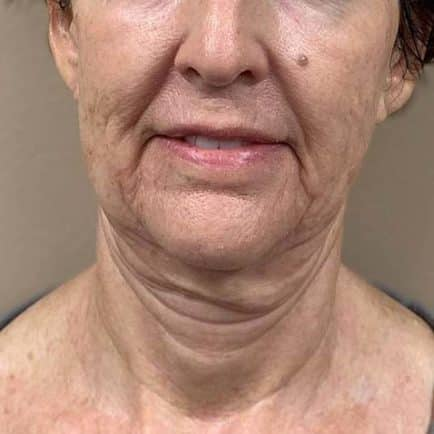 Front facing image of a woman before RF Microneedling treatment