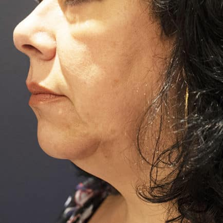 Profile image of woman's face before Microneedling with Radiofrequency treatment.