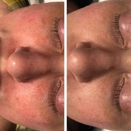 Woman's nose and cheeks with improved appearance of redness and rosacea before and after IPL photo rejuvenation treatments.