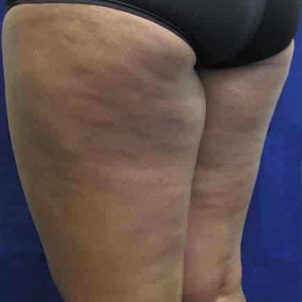 Cellulite on African-American woman's thighs before BodyFX treatment