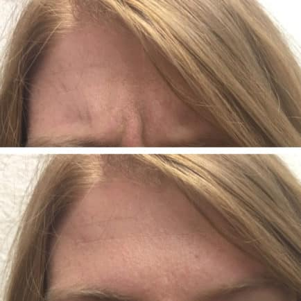 Before and after composite of woman's forehead before and after Dysport injections, showing the reduction of vertical lines between her eyes.