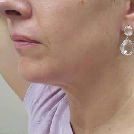Side profile of woman's face and neck with improved results after skin tightening.