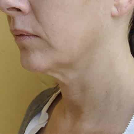 Face and neck of a woman with sagging skin before skin tightening.