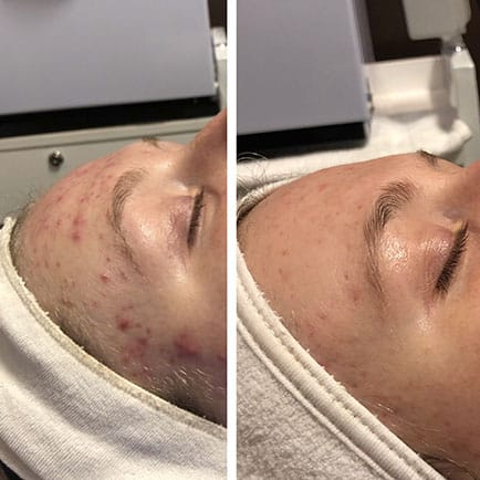 Woman's forehead with severe acne with improvement after Hydrafacial treatments.