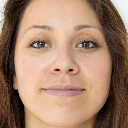 Woman's face with less redness, more brightness, and no congestion after a HydraFacial.