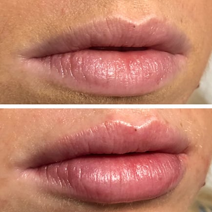 Plumper, more defined woman's lips after receiving Juvederm lip filler.