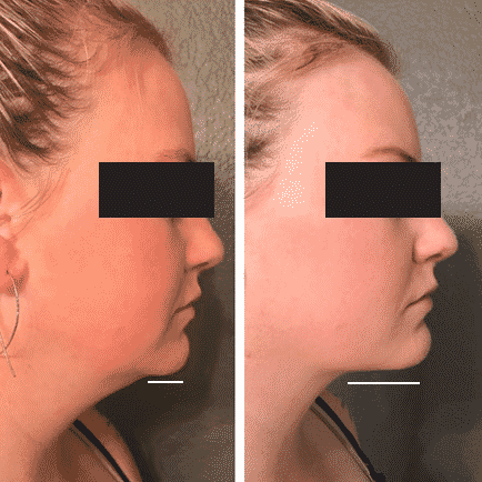 Side profile before and after image of a woman's improved chin contour after Kybella double chin treatment