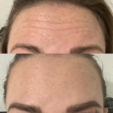 Woman's forehead lines before and after Dysport injections.