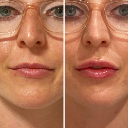 Juvederm lip filler before and after close-up at Viva Day Spa + Med Spa