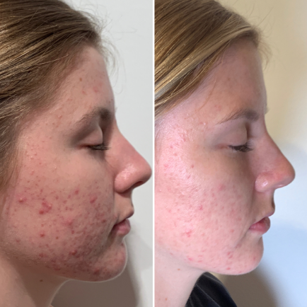 Before and after IPL Facial treatment of a patient with severe acne at Viva Med Spa in Austin