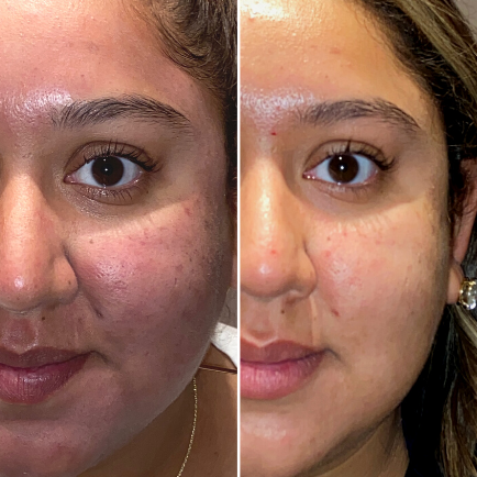 Before and after microneedling by SkinPen of a young, female patient at Viva Day Spa + Med Spa.
