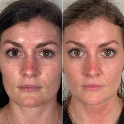 Morpheus RF Microneedling before and after photo of female client
