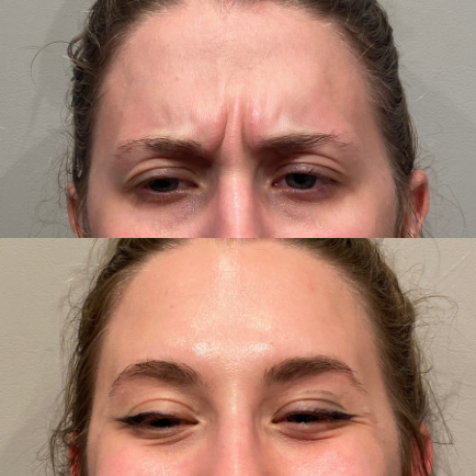 Photo of a young woman's forehead before and after Dysport injections to treat her glabella (elevens).
