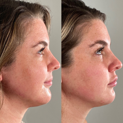Facial profile of a young woman before and after receiving jawline filler with Juvederm Voluma.