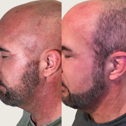 Male Before and After IPL Photofacial for Vascular Lesions on the neck and faceat Viva Day Spa