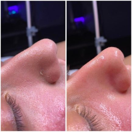 HydraFacial Before and Afer